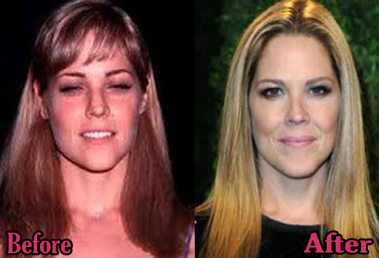 Mary Mccormack Before and After Pictures