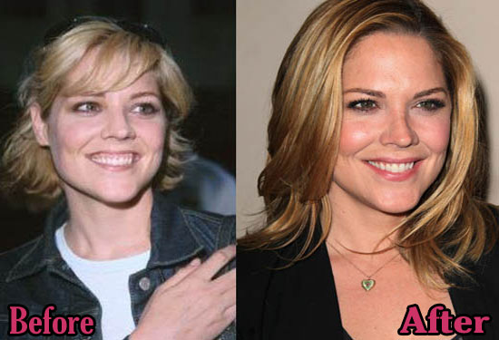 Mary Mccormack Before and After Plastic Surgery