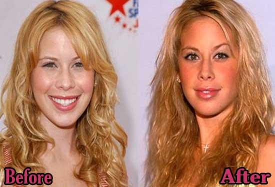 Tara Lipinski Before and After Plastic Surgery
