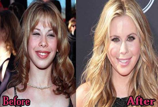 Tara Lipinski Plastic Surgery Before and After