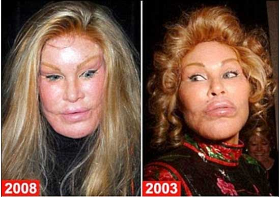 The Catwoman Plastic Surgery Before And After Pictures