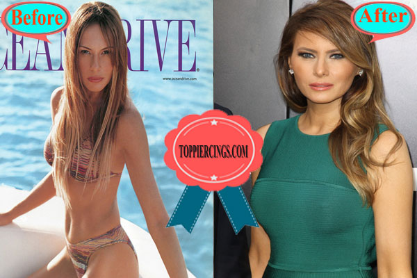 Melania Trump Plastic Surgery | Melania Trump Photos