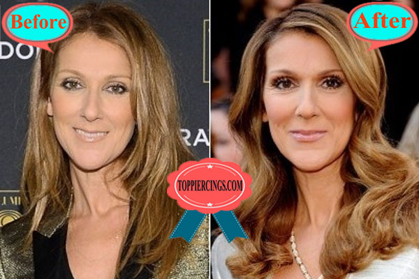 Celine Dion Nose Job Before And After Celine Dion Songs Age