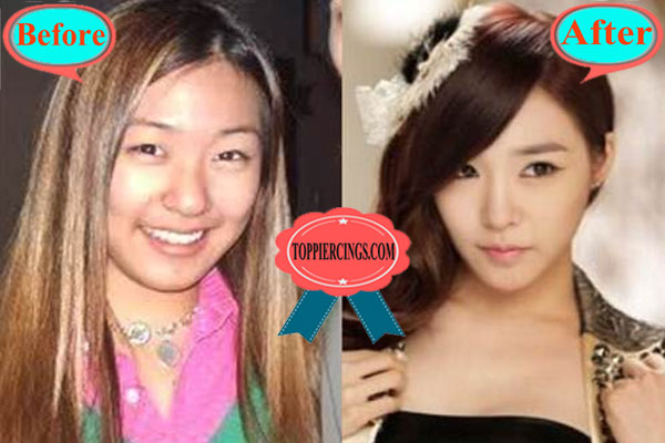 Tiffany Snsd Plastic Surgery Stephanie Hwang Plastic Surgery