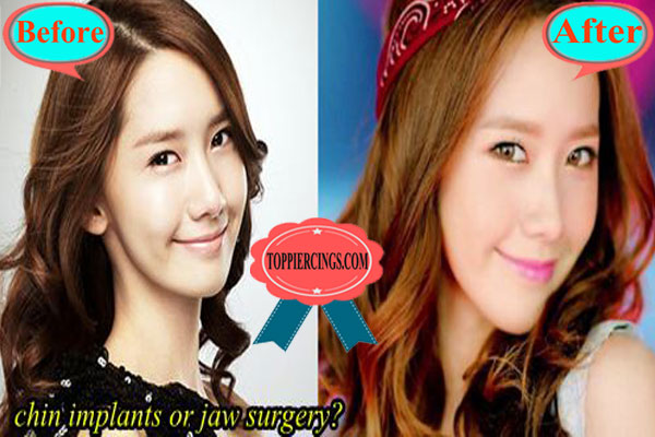 Yoona Snsd Plastic Surgery Im Yoona Height And Weight Top