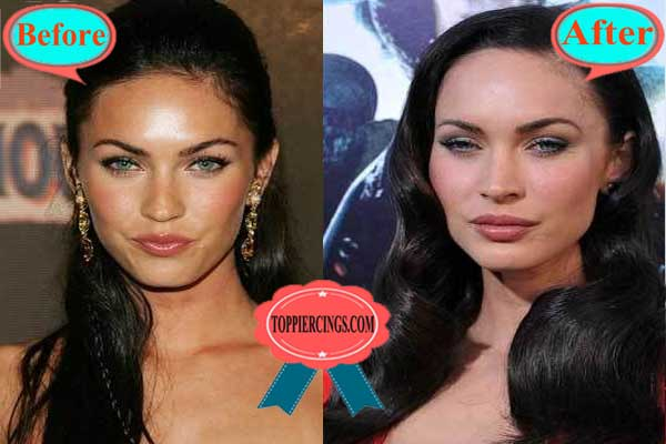 Megan Fox Plastic Surgery Before and After Lips Filler