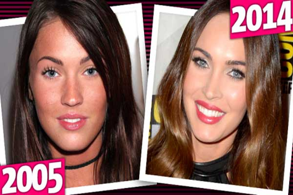 Megan Fox Surgeries Photos
