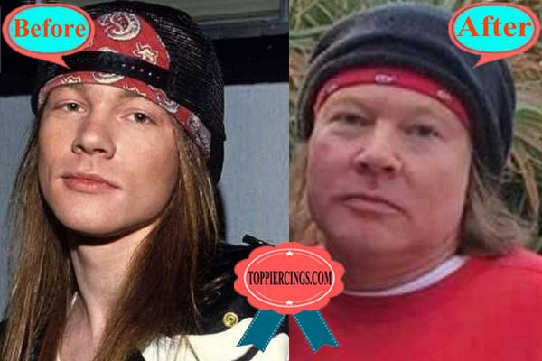 Axl Rose Plastic Surgery Before and After Pictures