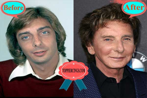 Barry Manilow Plastic Surgery Galleries