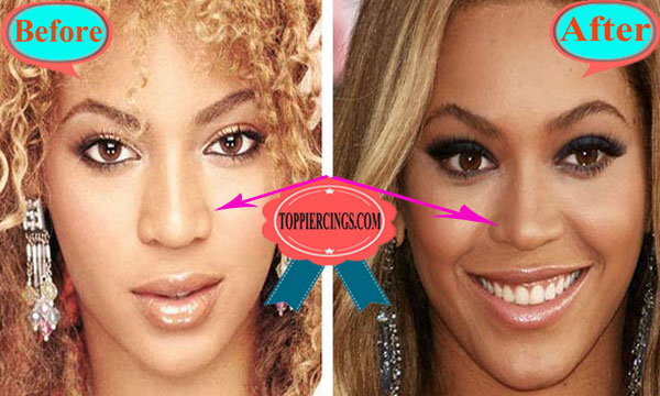 Beyonce Nose Job Before and After