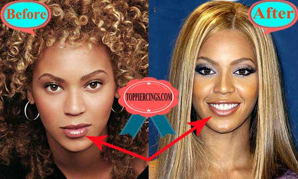 Beyonce Plastic Surgery Lips Reduction