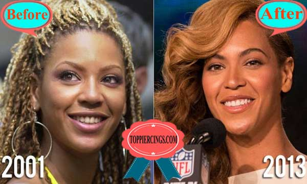 Beyonce Teeth Before and After Photos