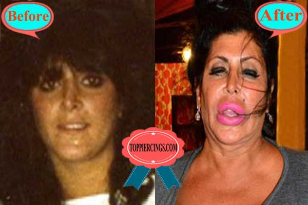 24 Worst Celebrity Plastic Surgery Before And After