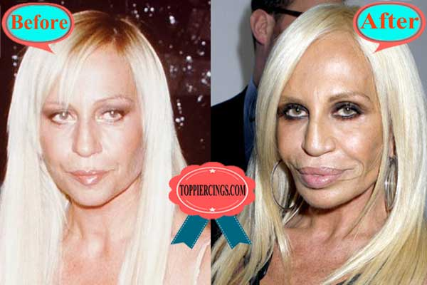 Donatella Versace Plastic Surgery Fail