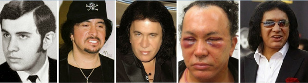 Gene Simmons Plastic Surgery Before and After Photos