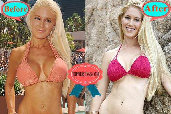 Heidi Montag Before and After Breast Reduction