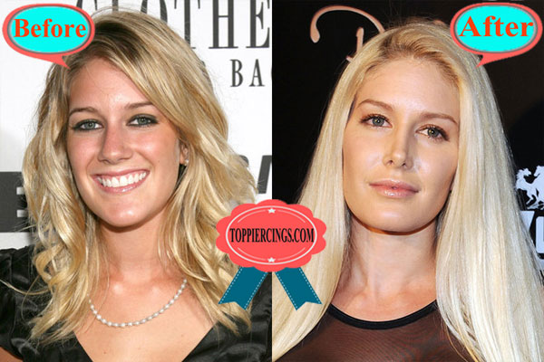 Ears Pinned Back >> Heidi Montag Plastic Surgery | Back Scoop Surgery Before And After – Top Piercings