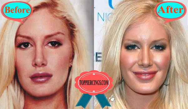 Heidi Montag Plastic Surgery Before and After Cheek Augmentation