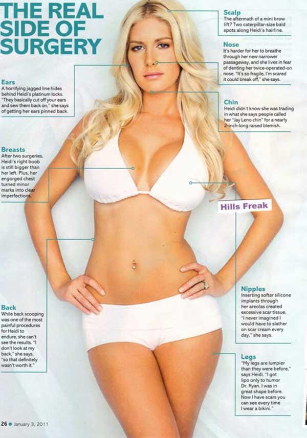 Heidi Montag Plastic Surgery Procedures