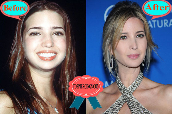 Ivanka Trump Nose Job Before and After Pictures
