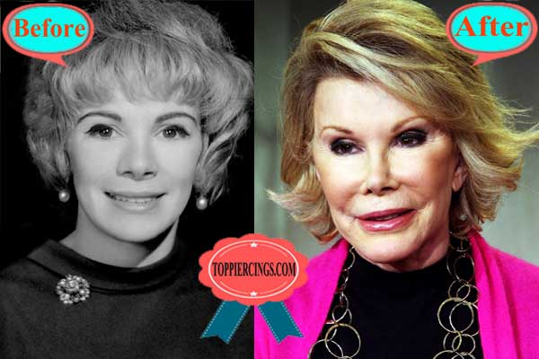 Joan Rivers Plastic Surgery Before After Photos