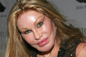 Jocelyn Wildenstein Cat Woman Plastic Surgery