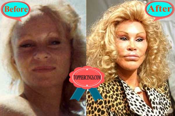 Jocelyn Wildenstein Plastic Surgery Before And After