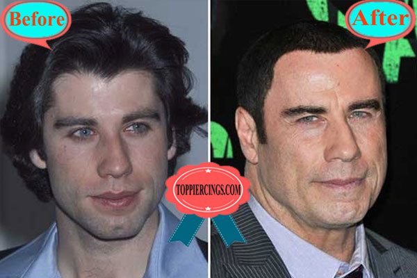 John Travolta Face Before and After