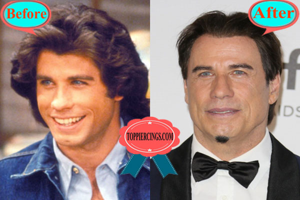 John Travolta Facelift Before and After