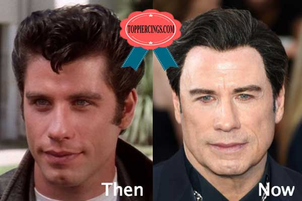 John Travolta Plastic Surgery Before and After