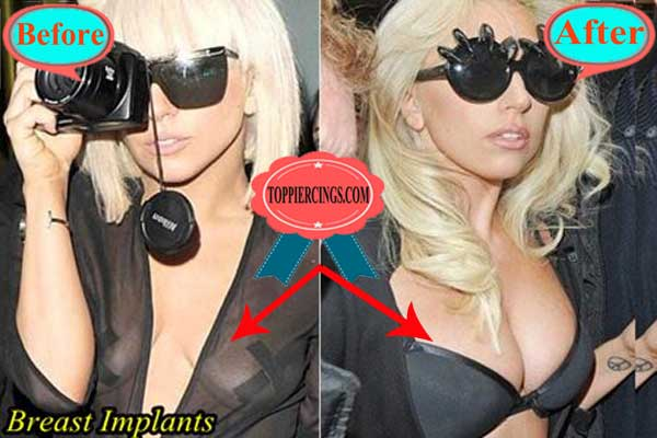 Lady Gaga Breast Implants Before and After