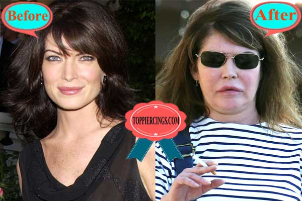 Lara Flynn Boyle Plastic Surgery Photos