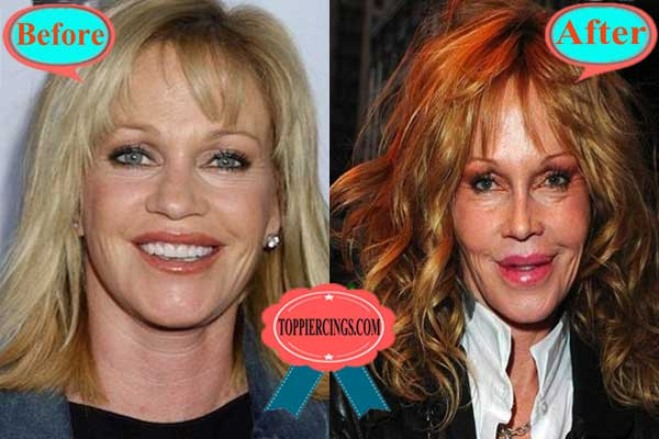 Melanie Griffith Plastic Surgery Photos Before After