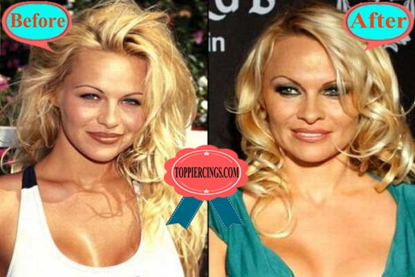Pam Anderson Plastic Surgery Before and After