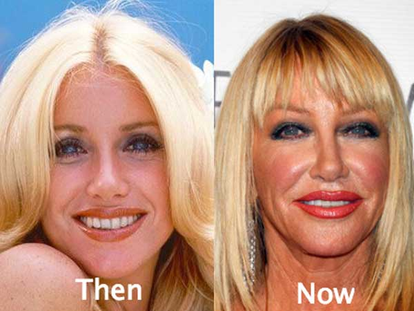 Suzanne Somers Plastic Surgery Disaster