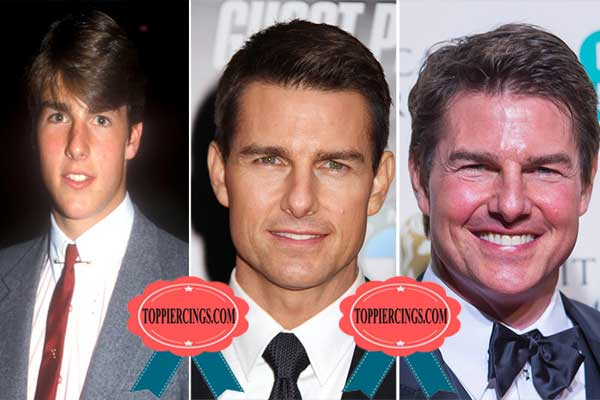 Tom Cruise Face Lift Before and After