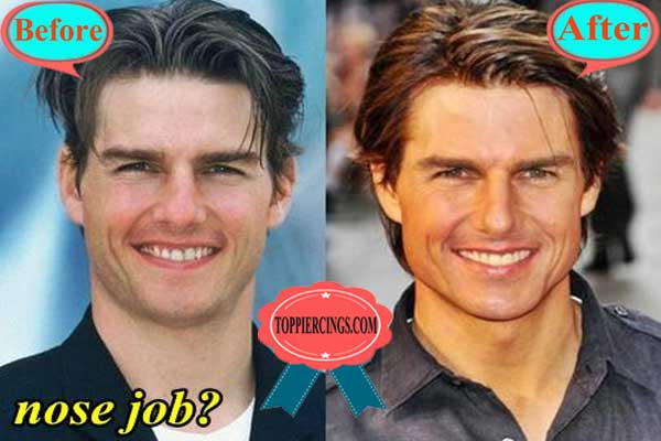 Tom Cruise Nose Job Before and After