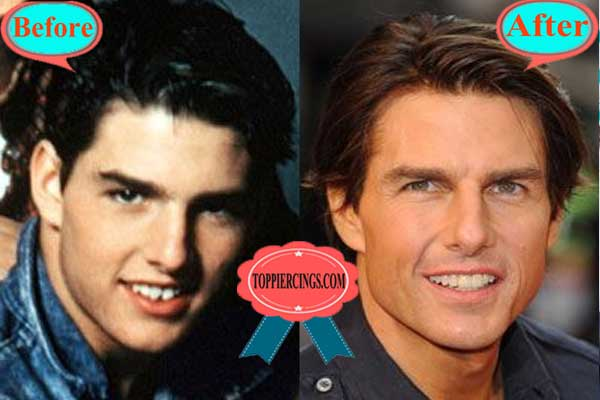 Tom Cruise Teeth Before and AfterTom Cruise Teeth Before and After