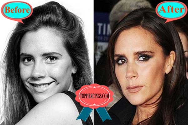 Victoria Beckham Plastic Surgery Face Before and After