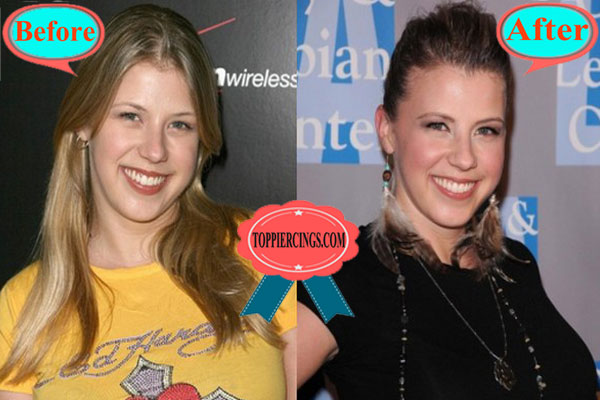 Jodie Sweetin Plastic Surgery Before and After Botox
