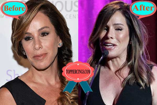 Melissa Rivers Plastic Surgery Before and After Pics
