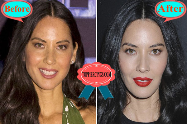Olivia Munn Plastic Surgery Face Before and After