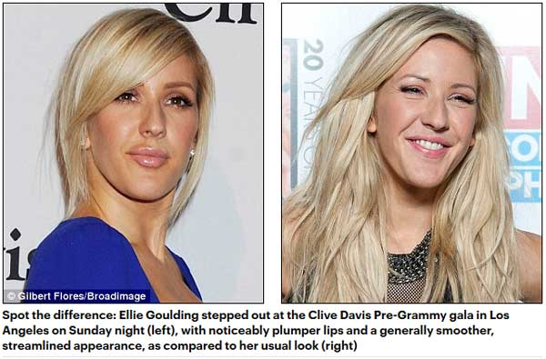 Ellie Goulding Before and After Photos