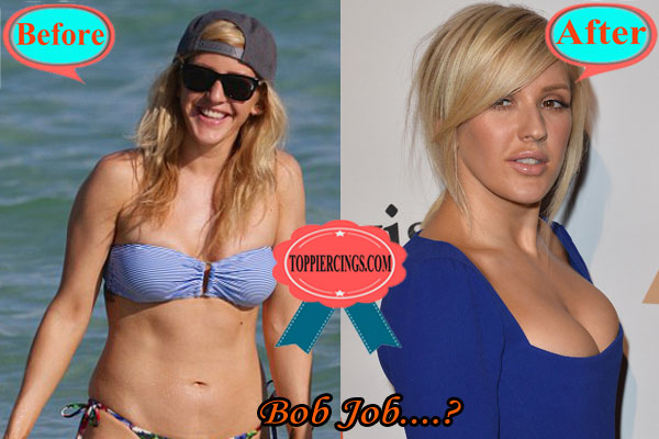 Ellie Goulding Plastic Surgery Before and After Boob Job