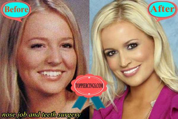 Emily Maynard Plastic Surgery Nose