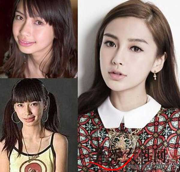 Angelababy Plastics Surgery Before After Pictures