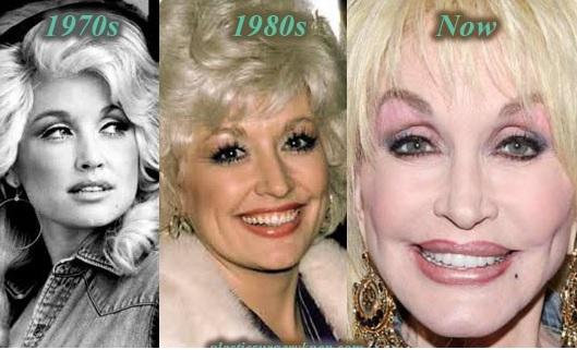 Dolly Parton NeckLift