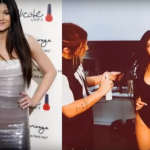 kylie jenner Before and After Plastic Surgery 3