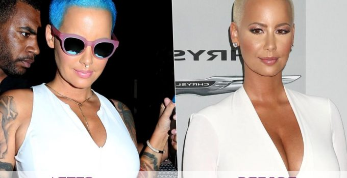 Amber Rose Plastic Surgery 2