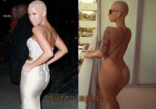 Amber Rose Plastic Surgery 3